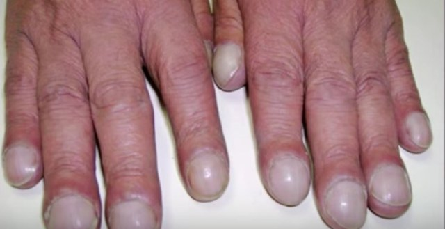 clubbed nails