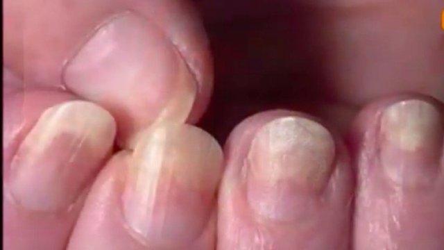 pale nails