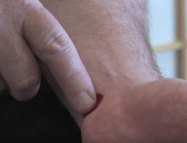 Image of acupressure point.