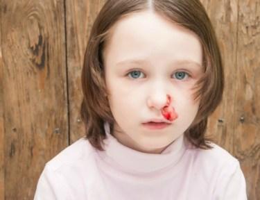 Image of girl with nosebleed.