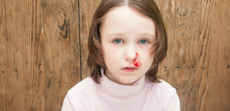 Image of girl with nosebleed.