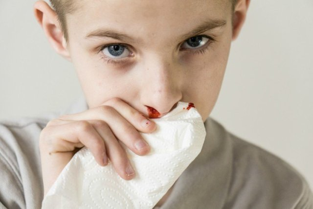 Image of boy with bloody tissue.