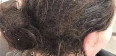 Depressed woman's hair after being in bed for 6 months