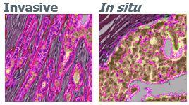 H&E annotated tumors