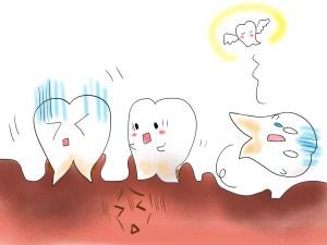 歯周病 歯槽膿漏