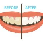 歯 黄ばみ 食べ物 落とす方法