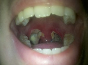 Tonsillectomy Day 5