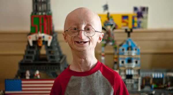 Progeria entre as doencas raras e exoticas