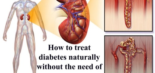 How to treat diabetes naturally without the need of medications