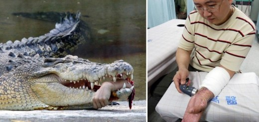 9 Unbelievable and astonishing body part reattachment surgeries