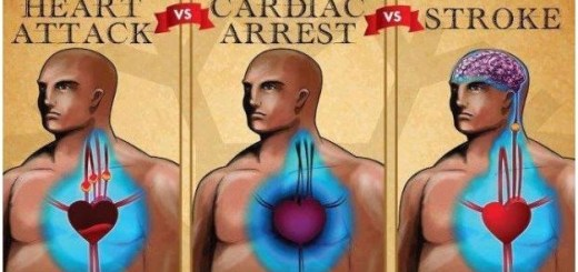 Learn what differentiates Cardiac arrest, Heart attack and a stroke. It might save a life someday.