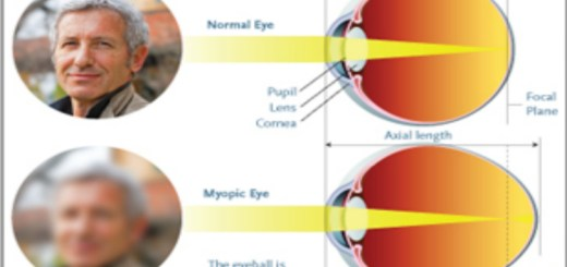 Almost half of the world population will be suffering from myopia by 2050