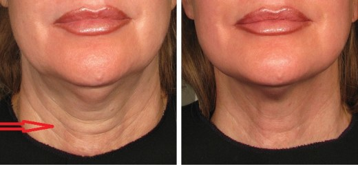 These 6 natural ways will remove the neck wrinkles and some may delay the process of skin-aging of the neck!