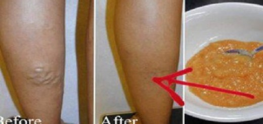 Suffering from varicose veins? Here is a simple homemade concoction to get rid of the condition