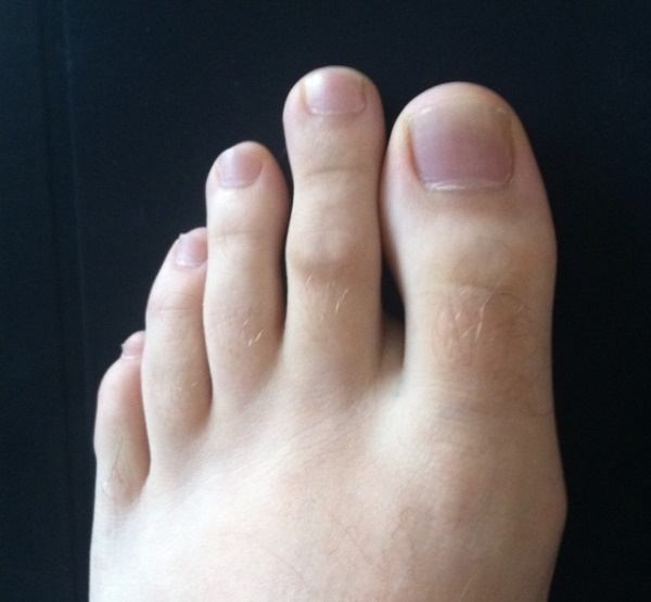 Second Toe