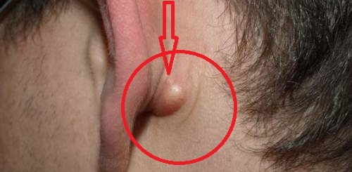 3 Things that a painless lump behind the ear can turn out to be