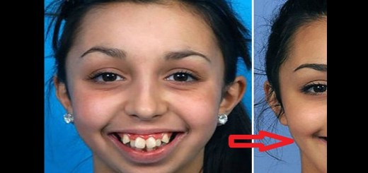 This girl got a live changing dental surgery. You won't believe how she looks after the surgery.