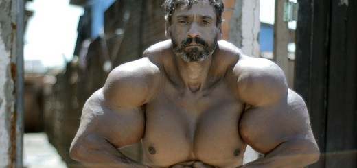 This bodybuilder has injected himself with something he shouldn't to get big biceps