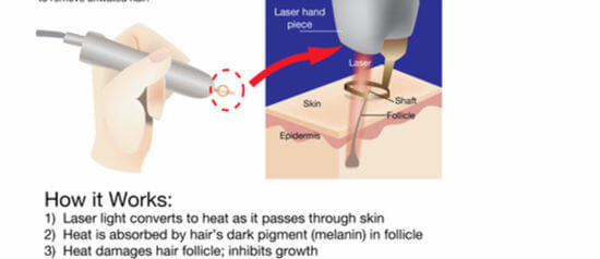 How does laser hairy removal work?