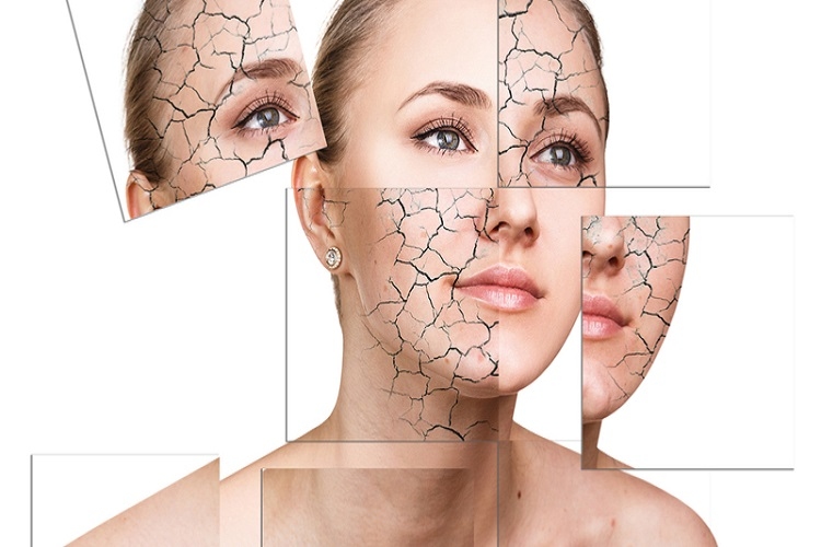 Everything about dry skin and itching, causes and symptoms along