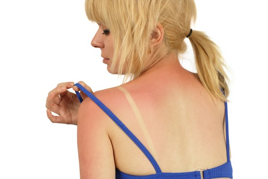 Sunburn Prevention and How to Get Your Summer Base at Jolplin's #1 Tanning Salon