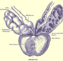 prostate2