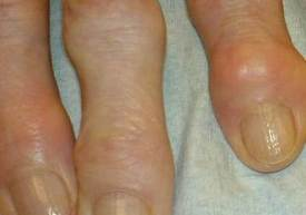 Bioidentical Hormones Prevent Osteoarthritis jeffrey dach md