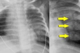 rib_fractures-2