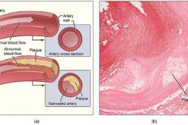 Atherosclerosis-Plaque-Wikimedia