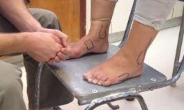 Reglas de Ottawa para diagnosticar las lesiones de tobillo y pie