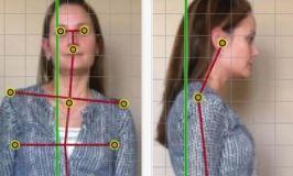 PostureScreen Mobile: App para valorar la postura del paciente