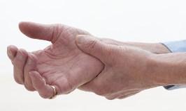 Rizartrosis o artrosis del pulgar: Características y consejos de tratamiento