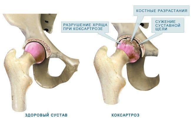 Лечение коксартроза 3 степени тазобедренного сустава без операции