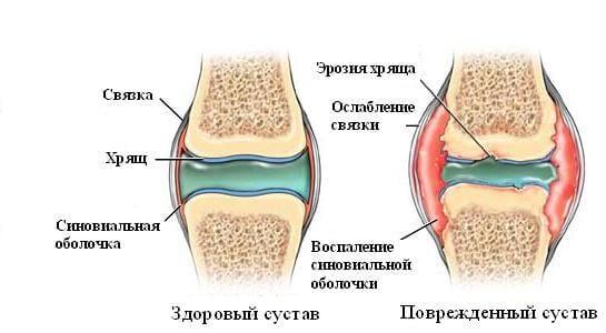 что делать если хрустят суставы по всему телу