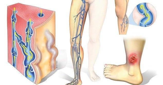 Трофические язвы на ногах лечение
