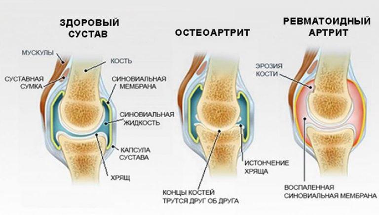 как лечить воспаление суставов ноги