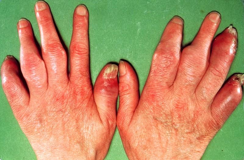 псориазный артрит таблетки