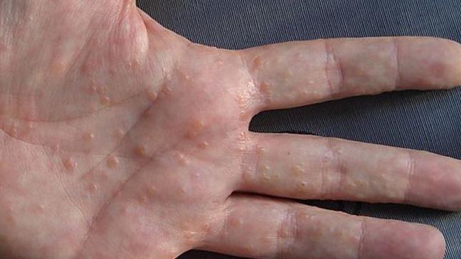 мокнущий лишай у человека фото признаки и лечение