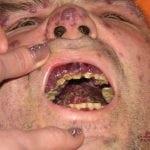 ВИЧ инфекция: симптомы у мужчин, фото начальной стадии