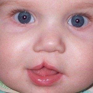 Заячья губа волчья пасть у ребенка фото