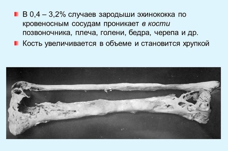Эхинококк: симптомы у человека, фото, причины и лечение эхинококкоза