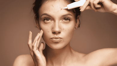 Best Acne Products for Teens