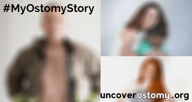 uncover ostomy announcement