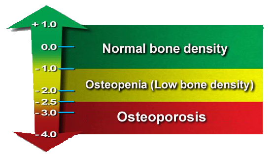 Bone Density Chart Understand Your Bone Density Scores - University