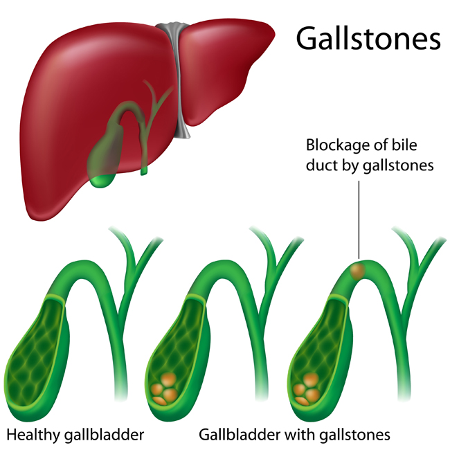 What Does a Gallbladder Attack Feel Like? - University Health News