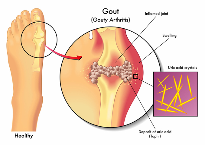 Gout in Foot? Here\u0027s How It Happens\u2014and How to Treat It - University