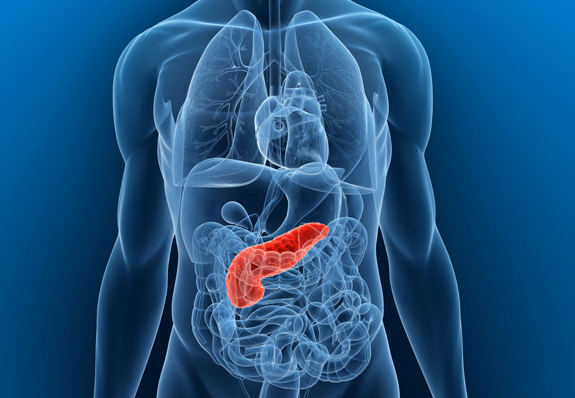 Pancreatitis Understanding the Causes and Symptoms - University