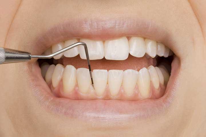Maintain Your Oral Health to Avoid Periodontitis - University Health