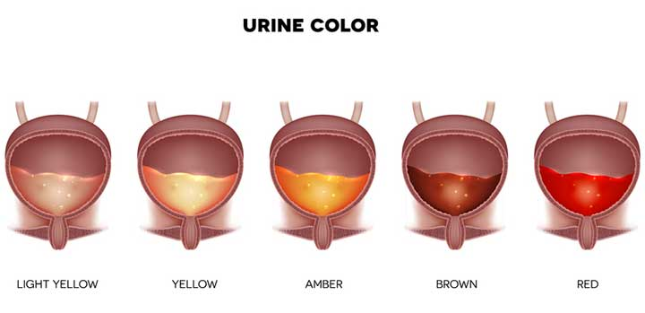 Normal\u201d Urine Color 50 Shades of Yellow - University Health News