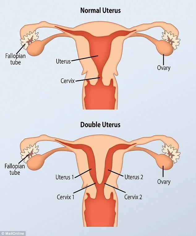 utero donna